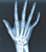 SCP-2679-B-526 (правая рука; заметно наличие дополнительных фаланг).