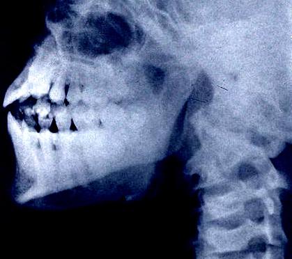 SCP-2679-B-985. Обратите внимание на деформированные челюсти и дополнительные зубы.
